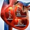 Corazón Sano, Vida Feliz