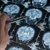 Stroke Hospitalizations Rising Among Younger U.S. Adults